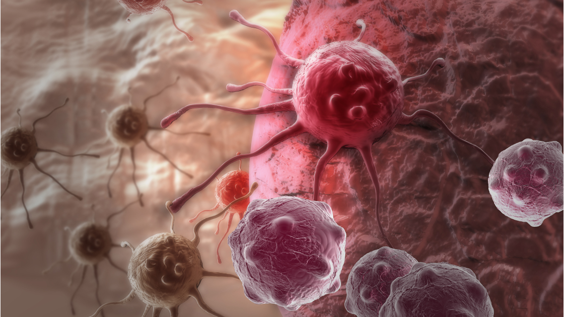 Success for individualised cancer vaccine - European Biotechnology