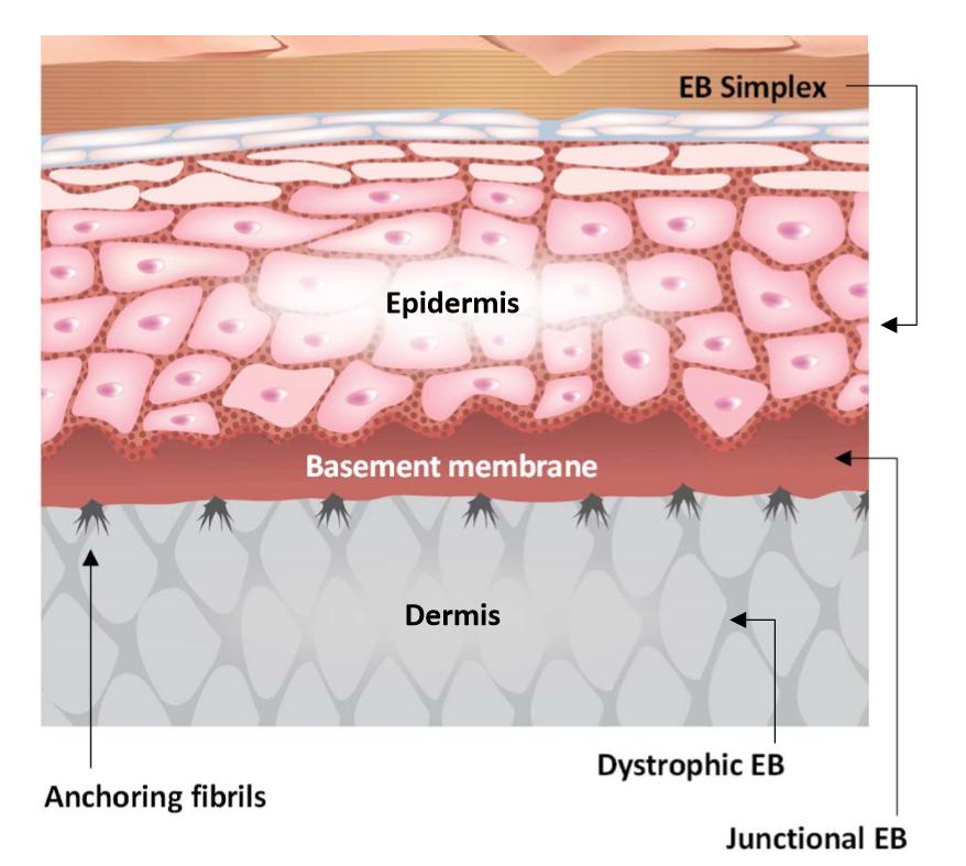 Stem cells cure deadly human skin disease - European