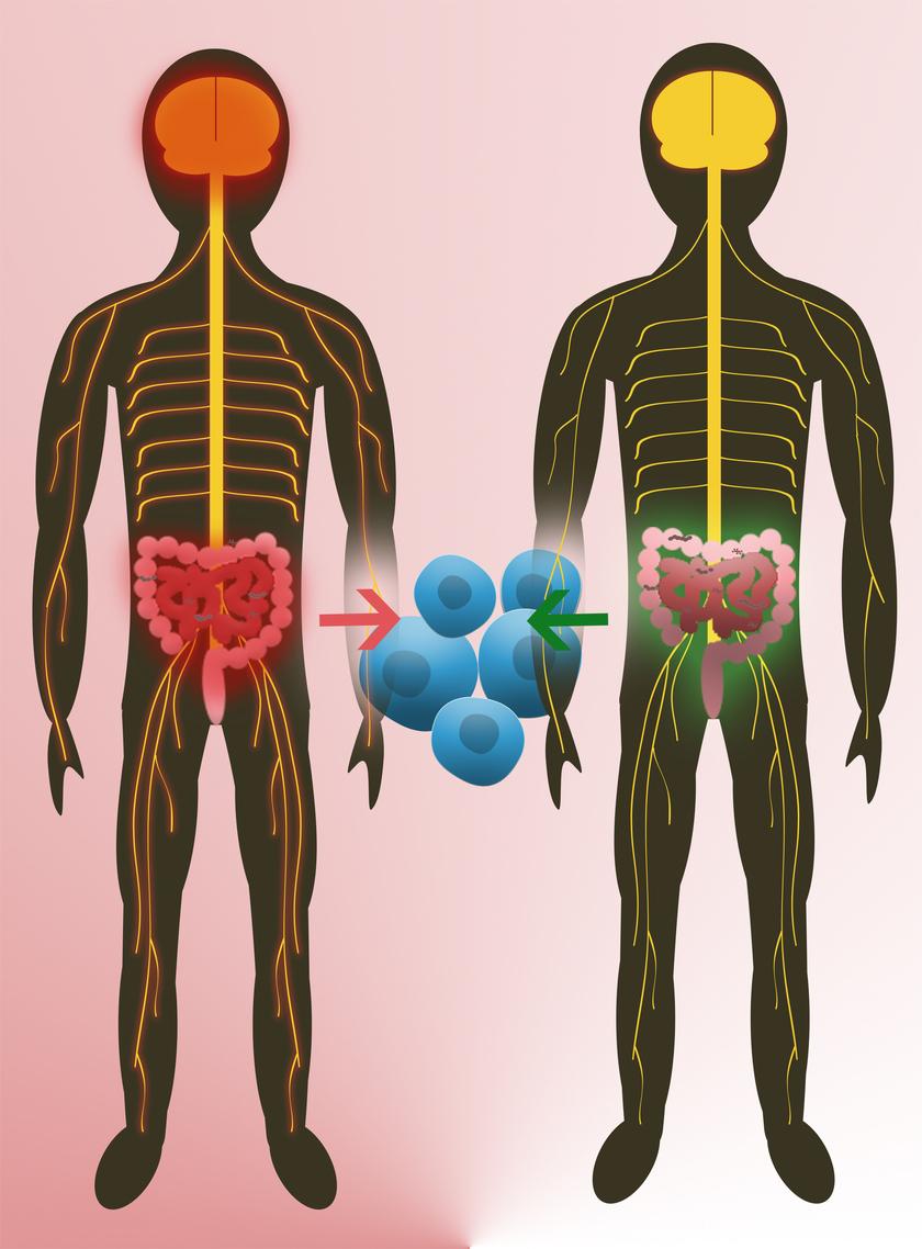 MS: Gut microbobes drive inflammation - European Biotechnology