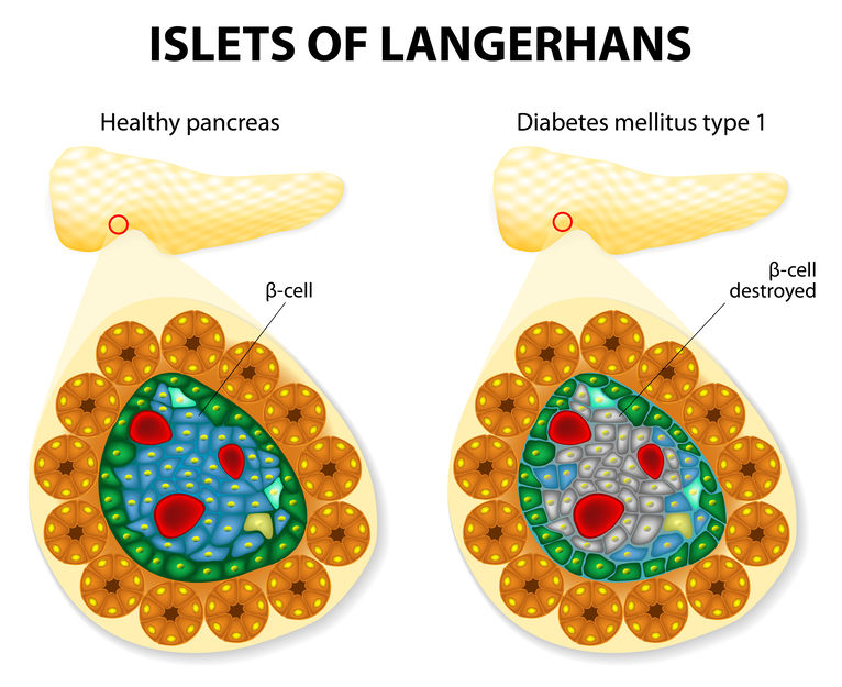 Reprogrammed pancreatic cells cure type I diabetes